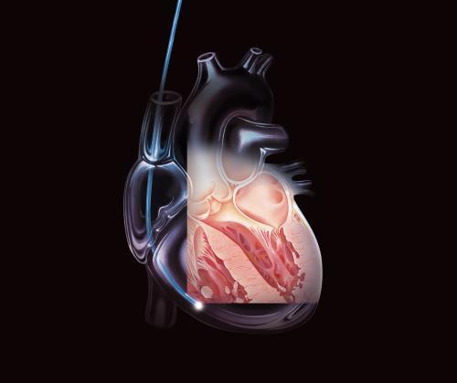 В Чехии мужчине врачи подарили искуственное сердце
