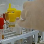 Тест на ВИЧ не показывает, болен ли человек СПИДом, он лишь означает, что в организме человека присутствует вирус иммунодефицита человека