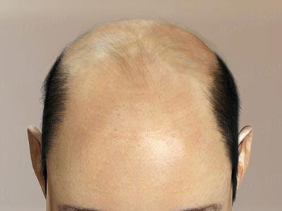 У кого волос нехватка