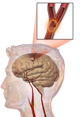 Как отразить мозговой удар